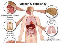 dấu hiệu thiếu vitamin c
